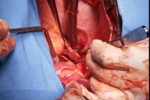 En el momento de la cirugía Foto:Fernando Cichero. Imagen Por: