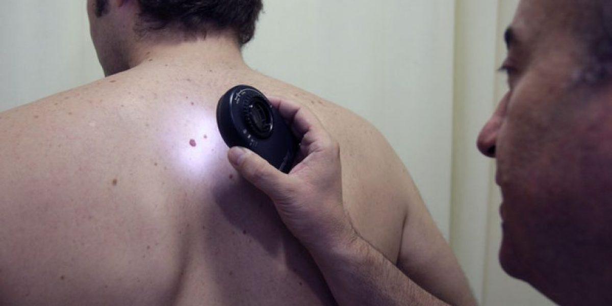 Más de 11 lunares en el brazo derecho indica riesgo de cáncer de piel
