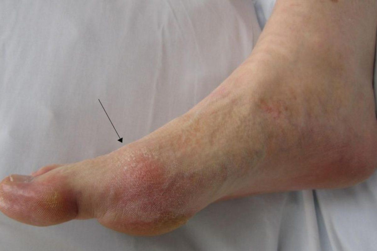 Este tipo de artritis ya no es propia del Medioevo. Sigue apareciendo. Foto:Wikipedia.. Imagen Por: