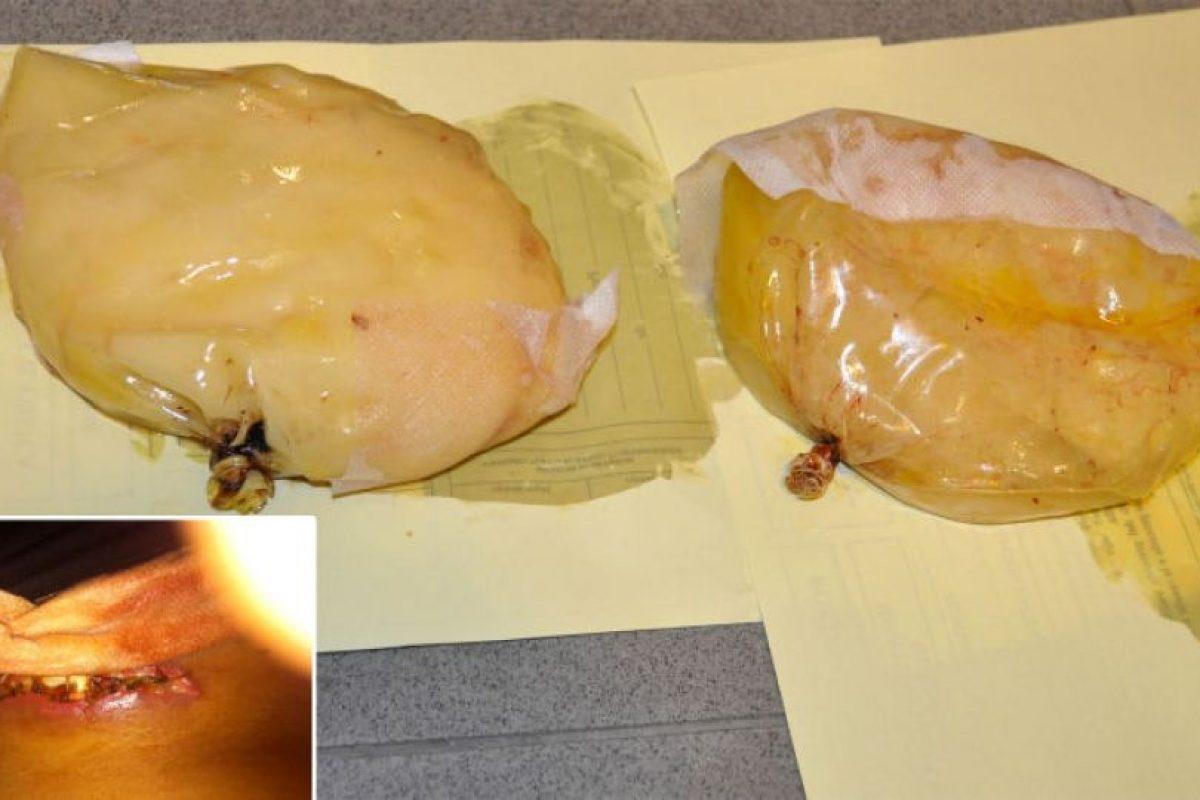 4. Una mujer fue detenida por transportar cocaína en sus implantes de senos, en 2012. Viajaba de Colombia a España Foto:Interior.gob.es. Imagen Por: