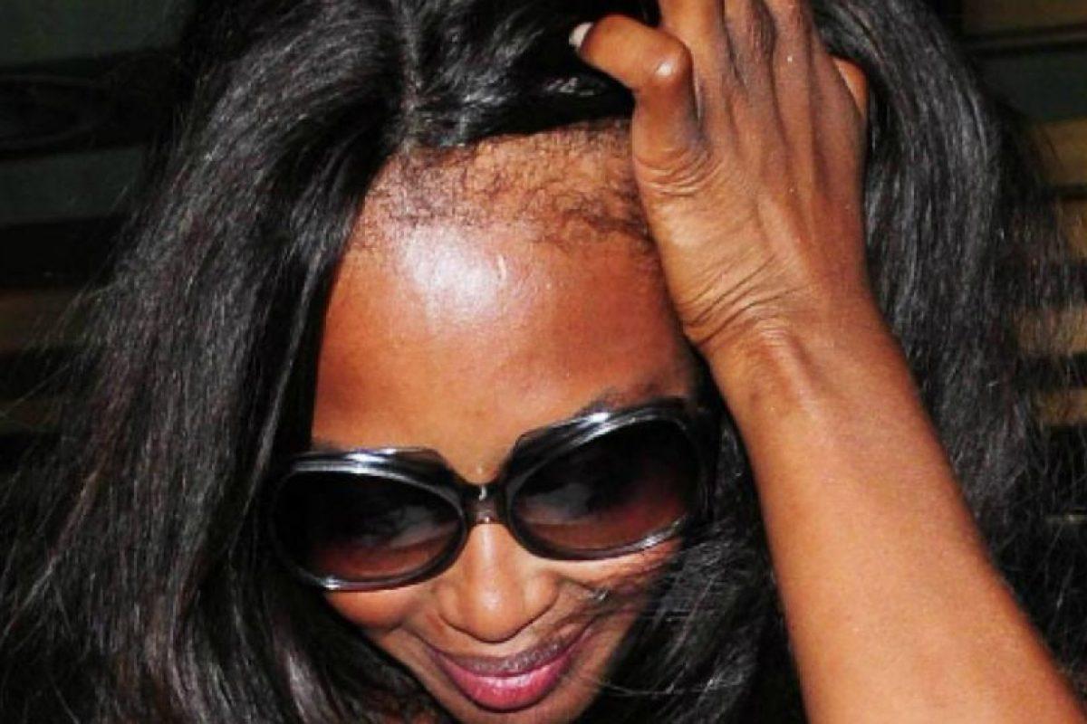 Y también el hecho de maltratar su cabellera por tanto tiempo, hicieron que se viera así. Foto:vía Getty Images. Imagen Por: