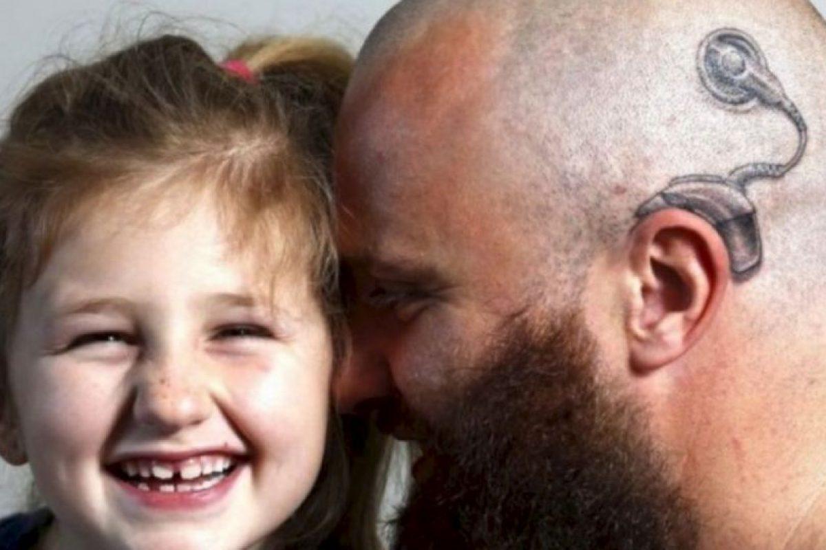 Este hombre se tatuó en la cabeza aparato auditivo para darle seguridad a su hija sorda. Foto:Vía Facebook.com/anitaalistair.campbell. Imagen Por:
