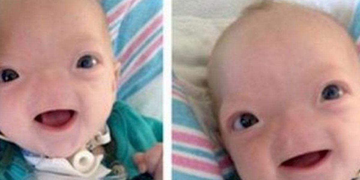 Bebé que nació sin nariz es verdaderamente encantador