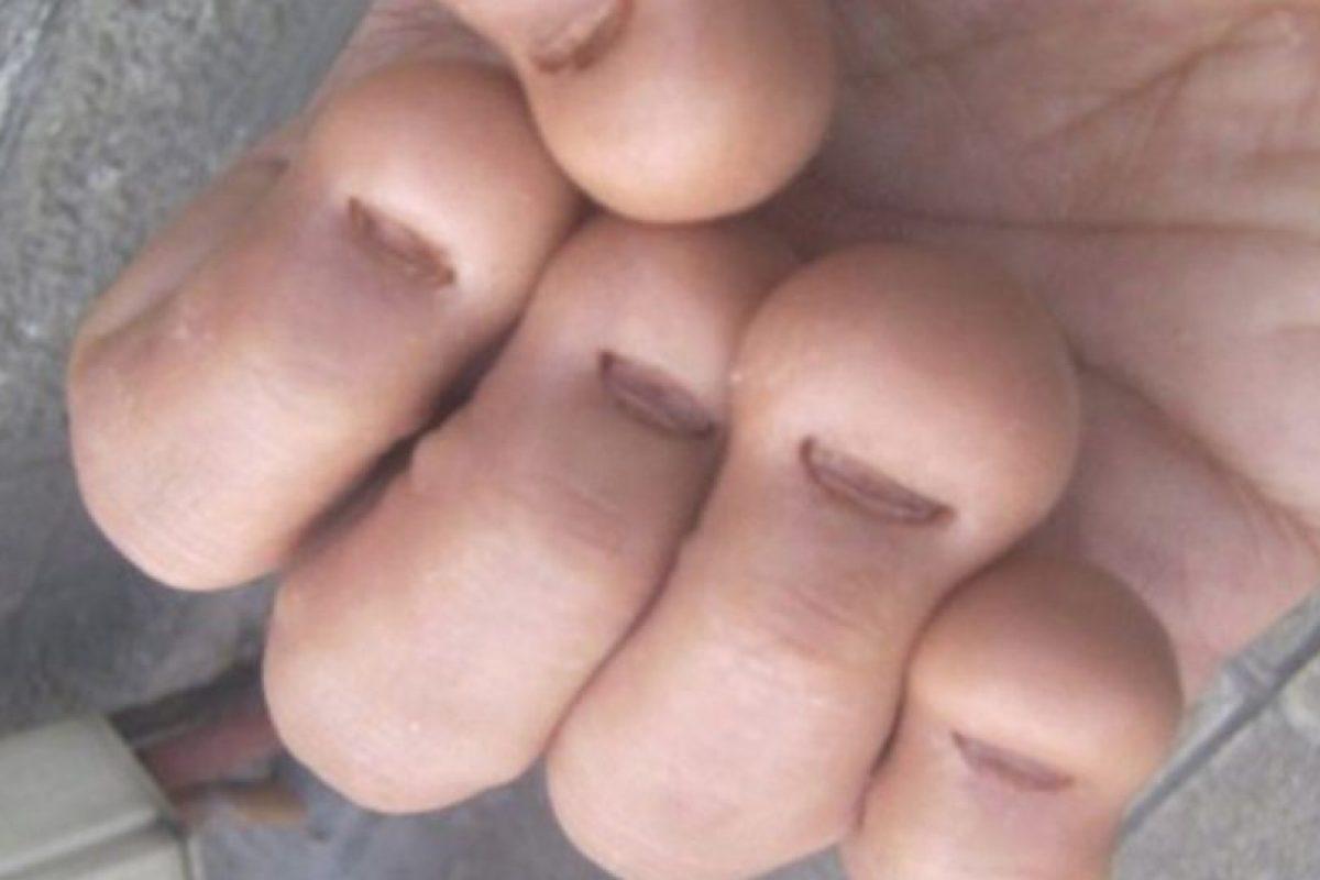 Después de ver estas imágenes no querrán volver a morderse las uñas Foto:Wikipedia. Imagen Por: