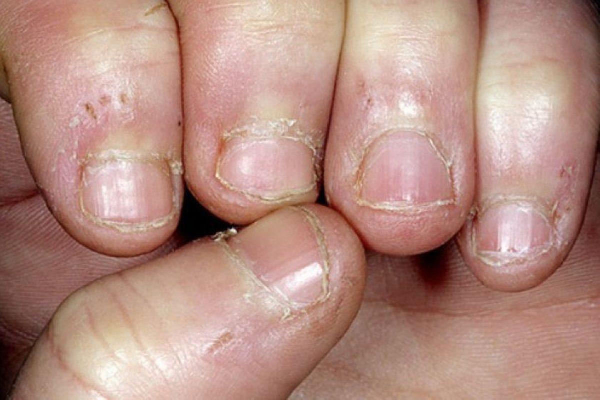 Después de ver estas imágenes no querrán volver a morderse las uñas Foto:Flickr. Imagen Por: