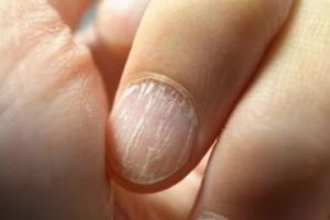 8. Morderse las uñas puede astillar los dientes. Foto:Flickr. Imagen Por: