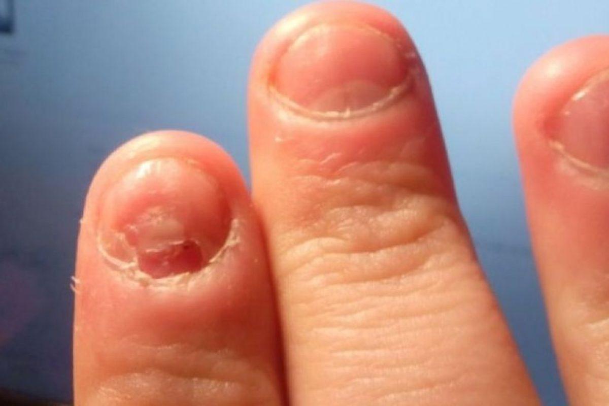 11. Morderse las uñas también puede causar gingivitis. Foto:Flickr. Imagen Por: