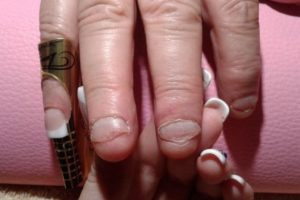 Esto, debido a que algunos pedazos se meten entre los dientes dañando las encías. Foto:Flickr. Imagen Por: