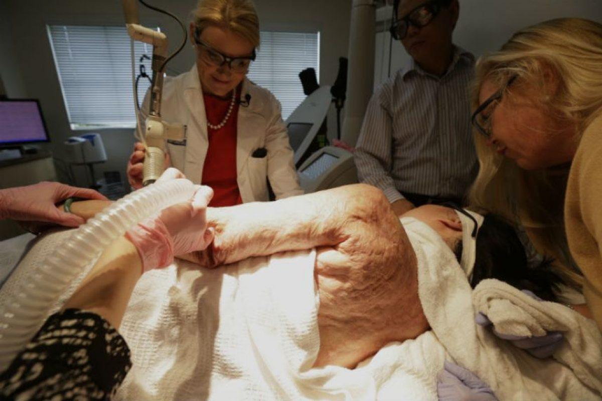 A sus 52 años comenzó un tratamiento láser que ayudara a eliminar sus cicatrices. Foto:AP. Imagen Por: