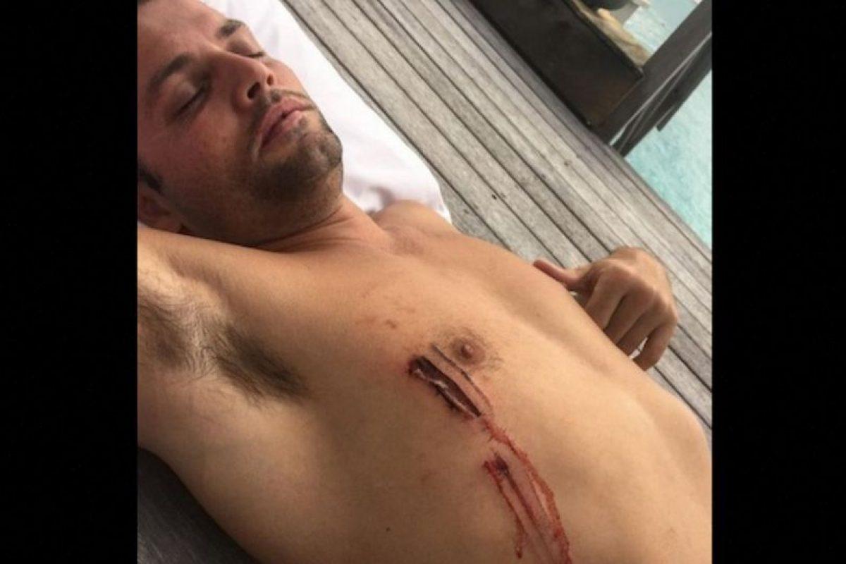 Durante un viaje con Justin Bieber el fotógrafo y director Joe Termini, sufrió una mordida de tiburón en Australia. Foto:Vía Instagram/Justin Bieber. Imagen Por: