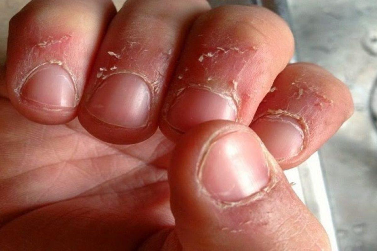 enfermedad de comerse la piel de los dedos