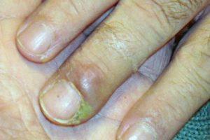 1. Aumenta el reisgo de padecer panoniquia: una infección en la piel que rodea la uña. Provoca hinchazón y enrojecimiento y pus alrededor de la uña. Foto:Tumblr. Imagen Por: