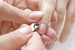 Si la infección empeora puede llegar a deformar los dedos, mencionó la dermatóloga de la Clínica Mayo, Rochelle Torgerson. Foto:Wikimedia. Imagen Por:
