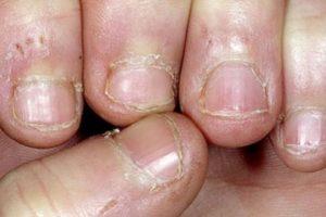 """7. Según un artículo publicado por la revista """"Time"""", morderse las uñas podría propiciar bacterias que incluyen salmonela, y escherichia coli, causando infecciones gastrointestinales fuertes. Foto:Wikimedia. Imagen Por:"""