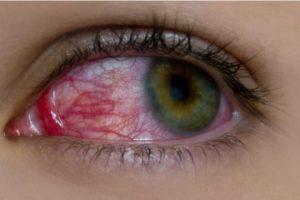 Esto podría ayudarles a lucir unos ojos blancos y no amarillos. Foto:wikimedia. Imagen Por: