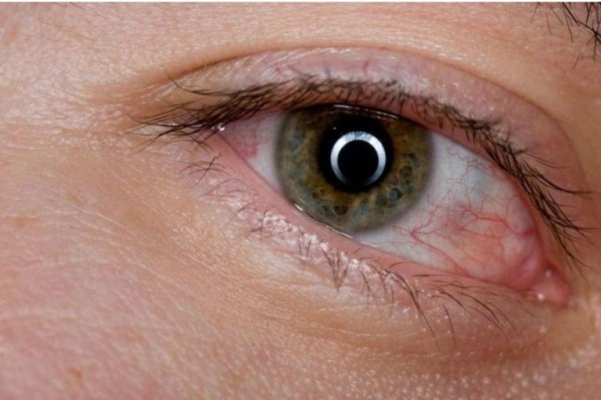 3. Derrames en los ojos (venitas rojas) Foto:Tumblr. Imagen Por: