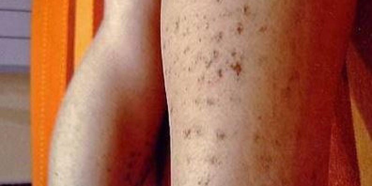 Los 16 peores resultados que pueden ocurrir al depilarse