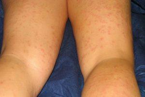 4. Algunas son alérgicas a muchos productos de depilación, tales como ceras o cremas. Foto:Wiimedia. Imagen Por: