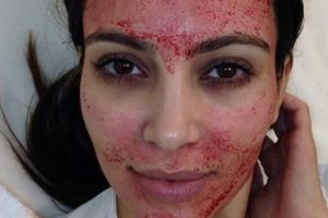 Kim Kardashian y su mascarilla de sangre. Foto:vía Instagram. Imagen Por: