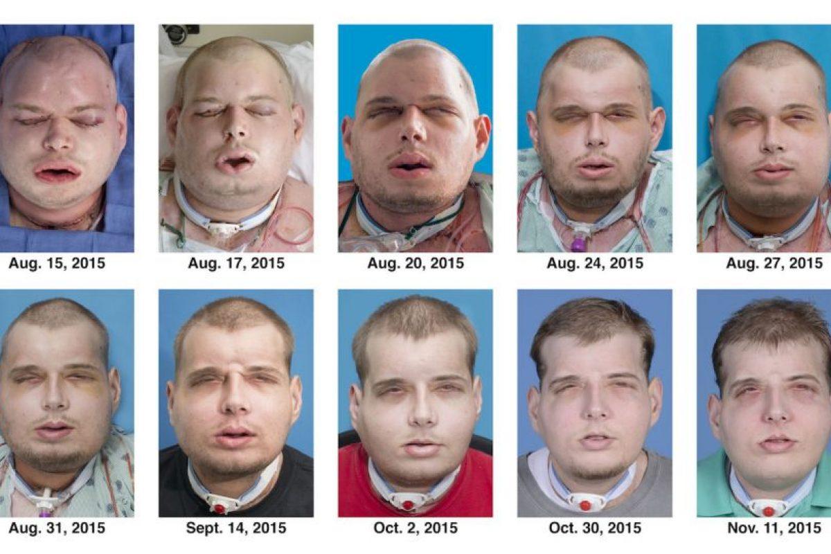 Y fue hasta el pasado agosto que logró conseguir su transplante tras una cirugía de 26 horas. Foto:AP. Imagen Por: