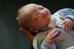 Eli Thompson nació sin nariz. Foto:vía AP. Imagen Por: