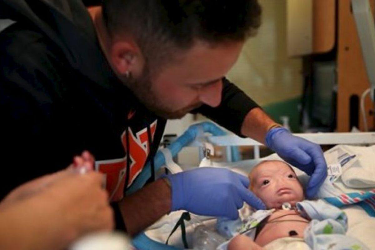El niño decidirá si quiere operarse. Foto:vía AP. Imagen Por: