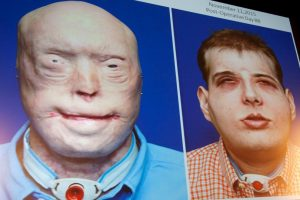 Médicos estadounidenses anunciaron el transplante de cara más complejo de la historia. Foto:AFP. Imagen Por: