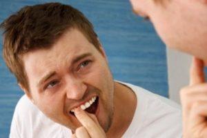 14 dentaduras peores que el sueño de perder los dientes Foto:Pixabay. Imagen Por:
