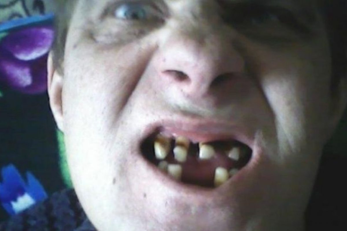 14 dentaduras peores que el sueño de perder los dientes. Imagen Por: