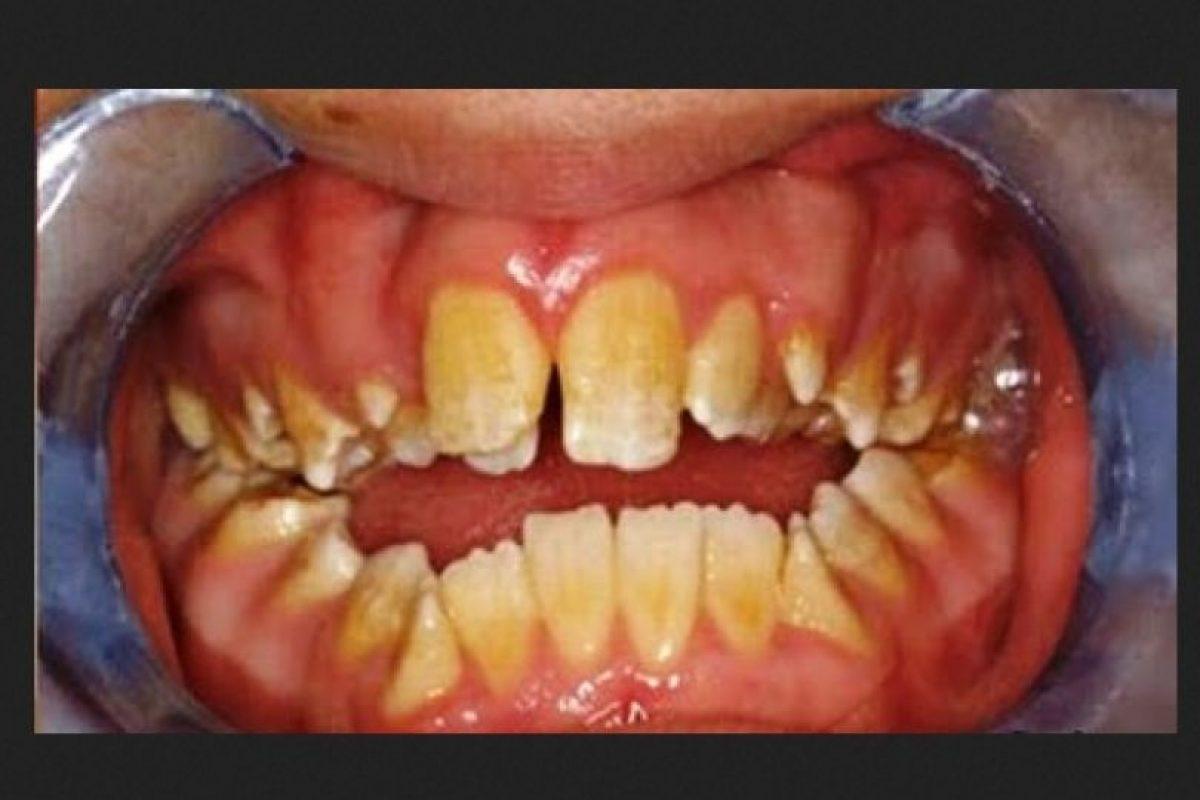 14 dentaduras peores que el sueño de perder los dientes Foto:Imgur. Imagen Por: