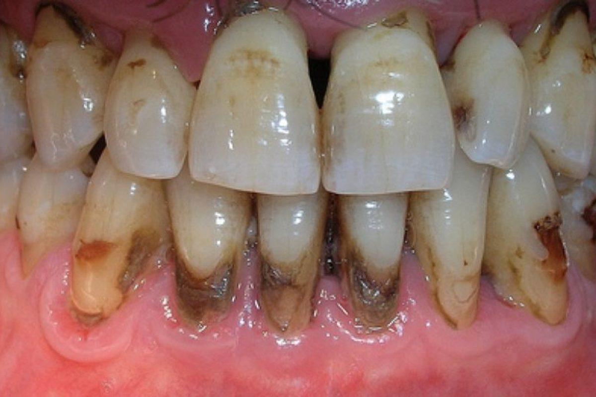 14 dentaduras peores que el sueño de perder los dientes Foto:Tumblr. Imagen Por:
