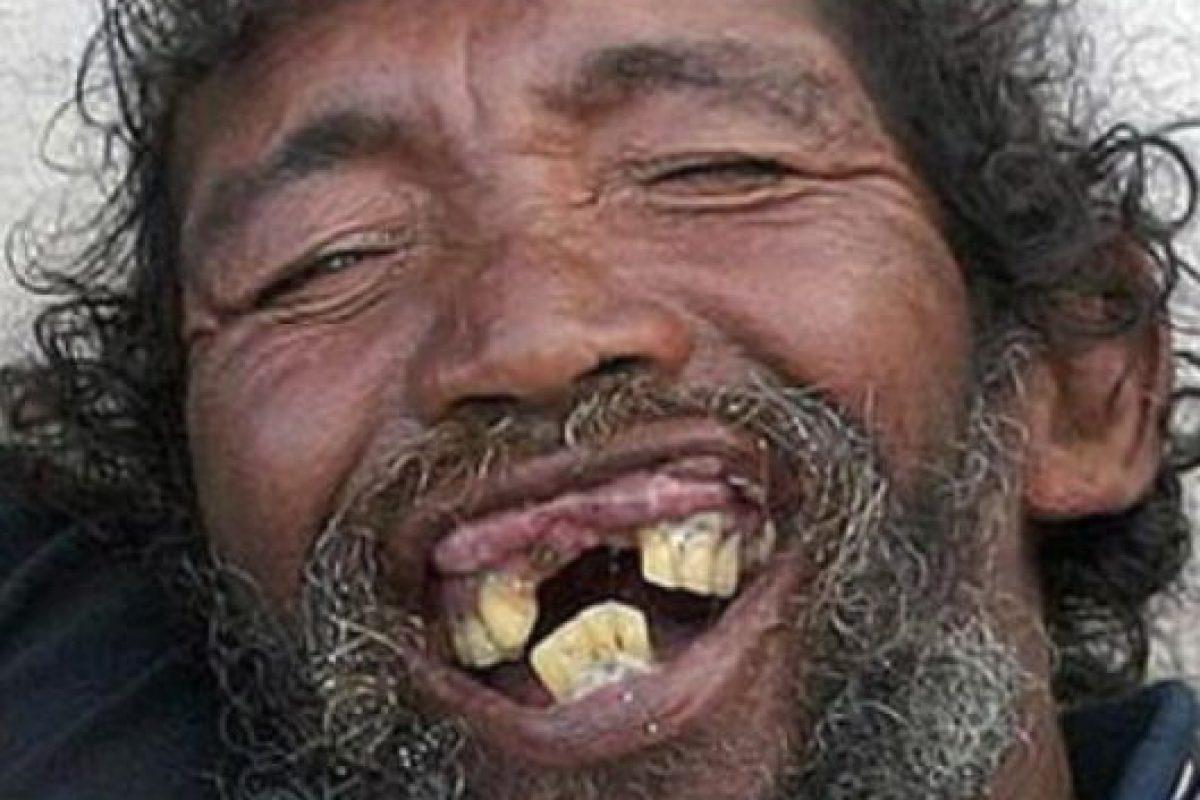 14 dentaduras peores que el sueño de perder los dientes Foto:Dogguie. Imagen Por: