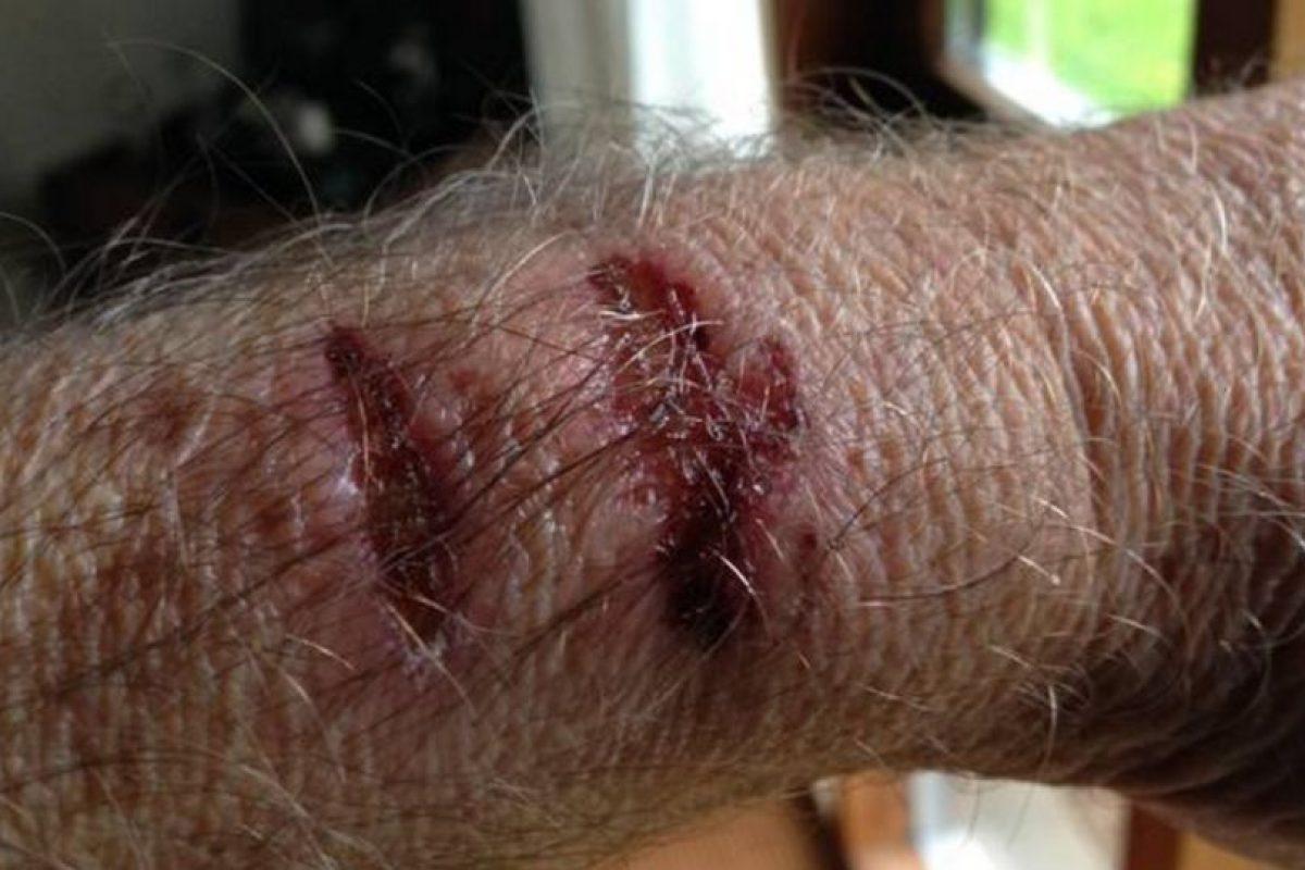 También se dañó los dedos de la mano derecha. Foto:vía ekstrabladet.dk. Imagen Por: