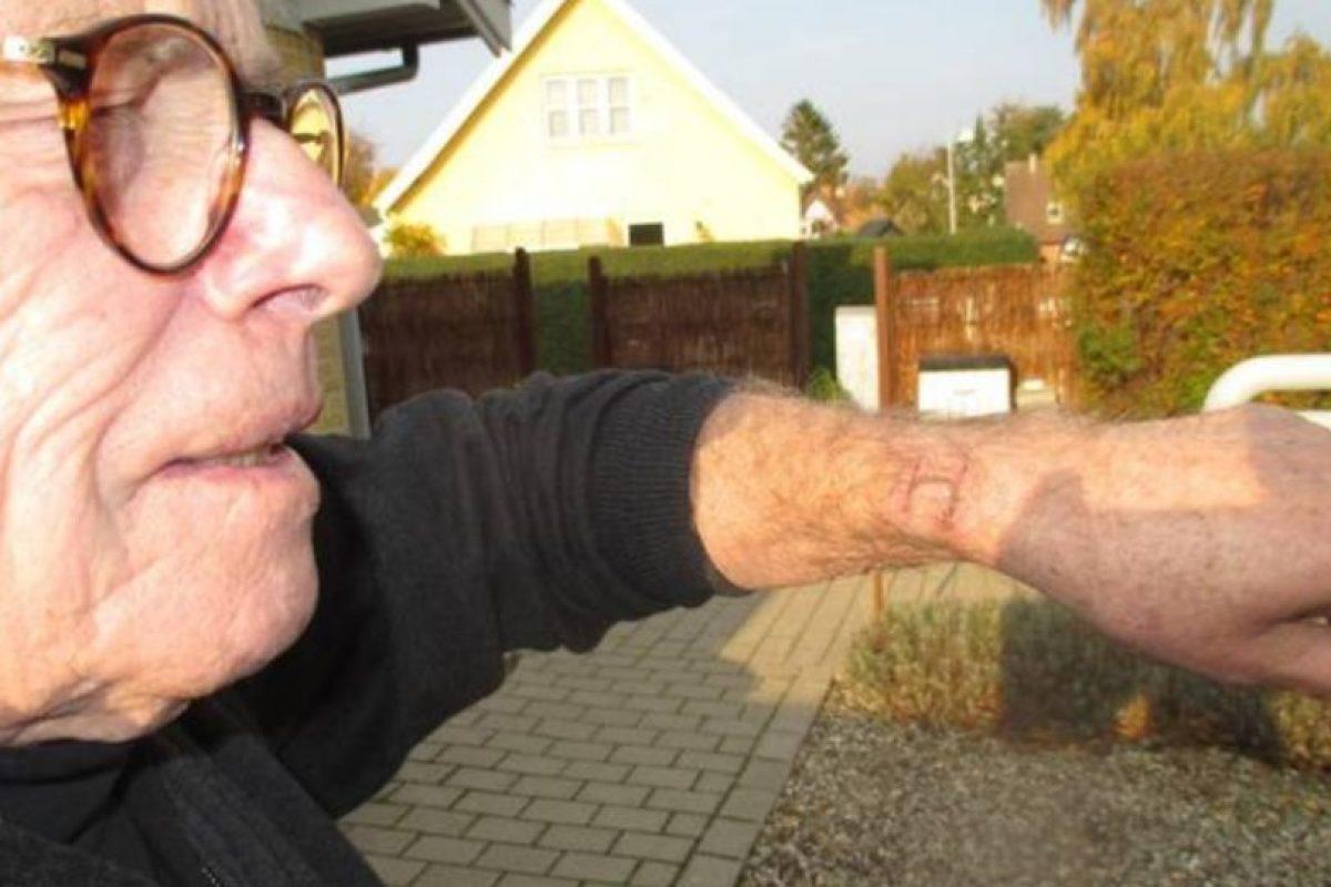 Jørgen Mouritzen dice que su Apple Watch le causó severas quemaduras. Foto:vía ekstrabladet.dk. Imagen Por: