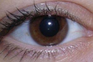 2. Bolsas debajo de los ojos Foto:vía Pinterest. Imagen Por: