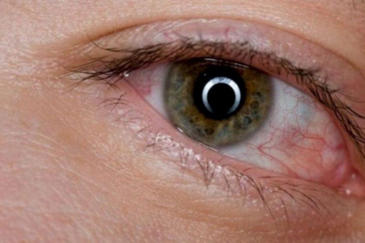 3. Derrames en los ojos (venitas rojas). Foto:vía Pinterest. Imagen Por: