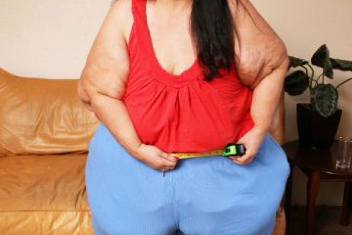 Desde ahí, la madre de cuatro hijos comenzó con dieta estricta. Foto:vía Barcroft Media. Imagen Por: