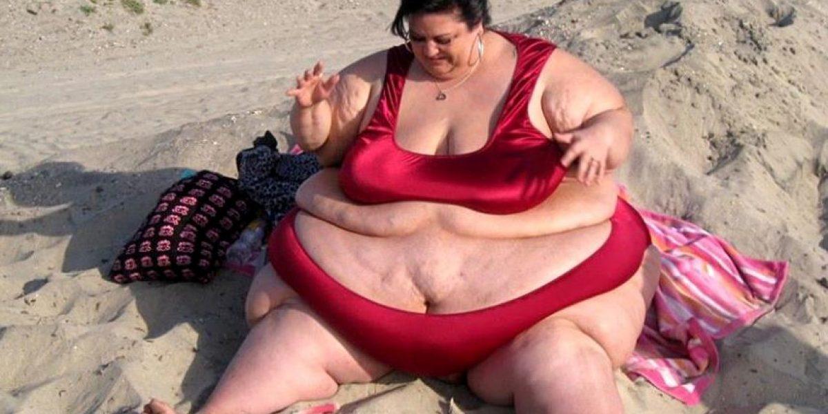 Mujer echa a su novio y deja de ser una obesa mórbida de 327 kilos