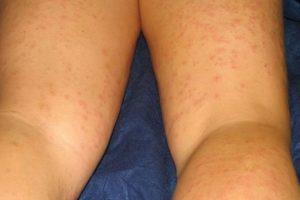 6. Esta chica resultó alérgica a un componente de su crema para depilar. Foto:ía Instagram/#DepilacionFail. Imagen Por: