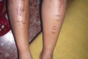 4. Esta otra chica sufrió una negligencia: la estética que le realizó depilación láser terminó por indemnizarla. Foto:ía Instagram/#DepilacionFail. Imagen Por: