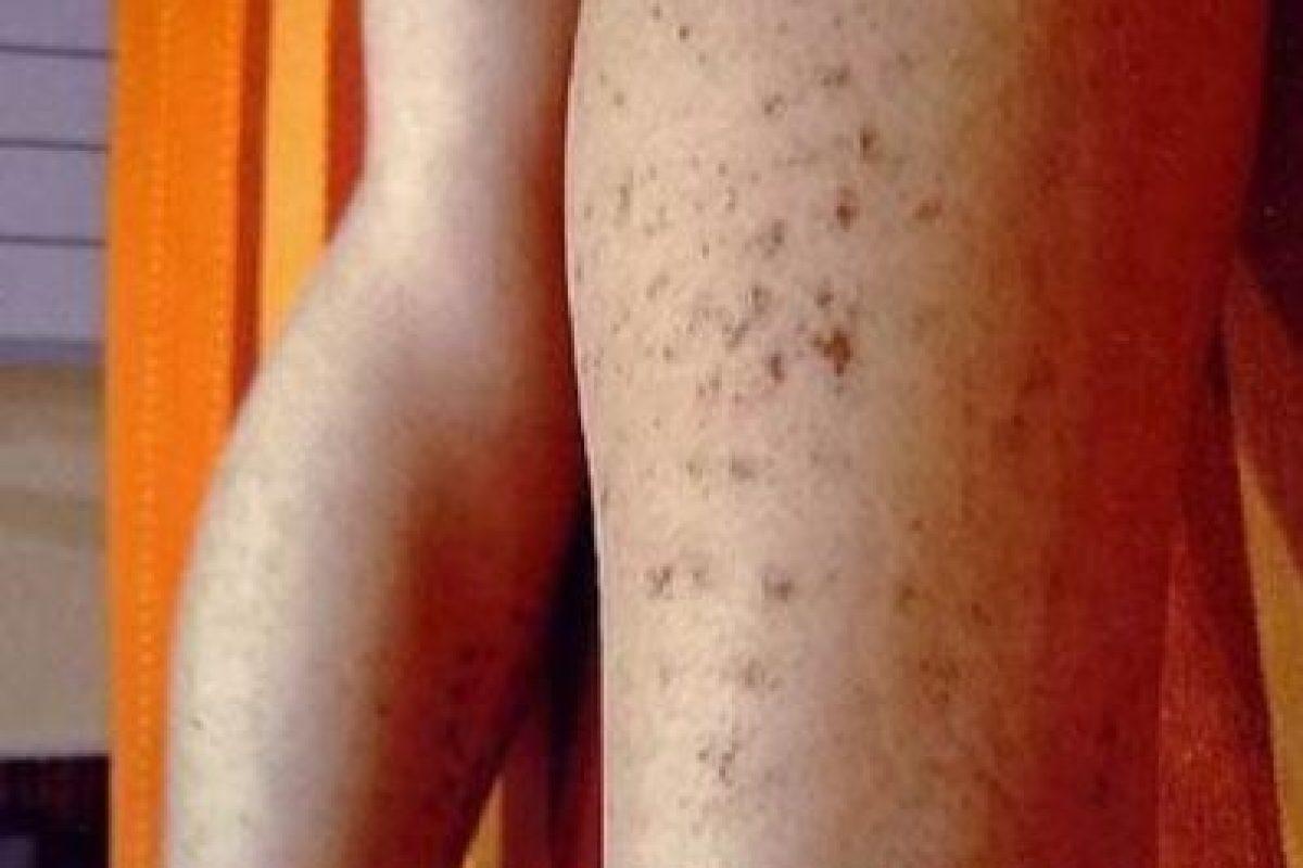 5. Mujer española sufrió fuertes quemaduras a causa de una depilación láser. Foto:ía Instagram/#DepilacionFail. Imagen Por: