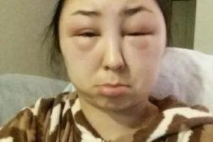 1. La usuaria de Imgur, TheChosenGinger, sufrió esta alergia. Foto:Reddit. Imagen Por:
