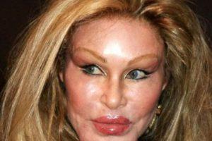 8. Jocelyn Wielderstein. Abisó de la cirugía y el botox. Foto:Getty Images. Imagen Por: