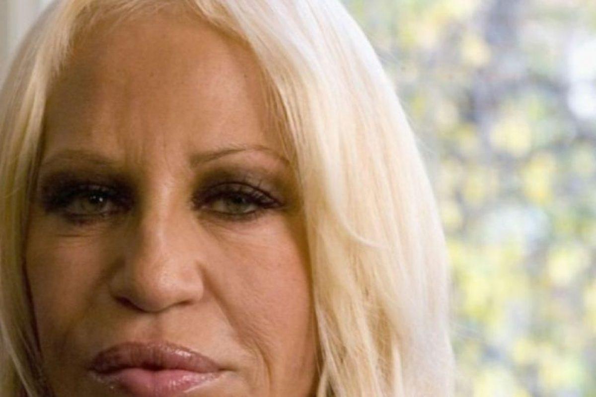 Sus cirugías han modificado mucho su rostro.. Imagen Por:
