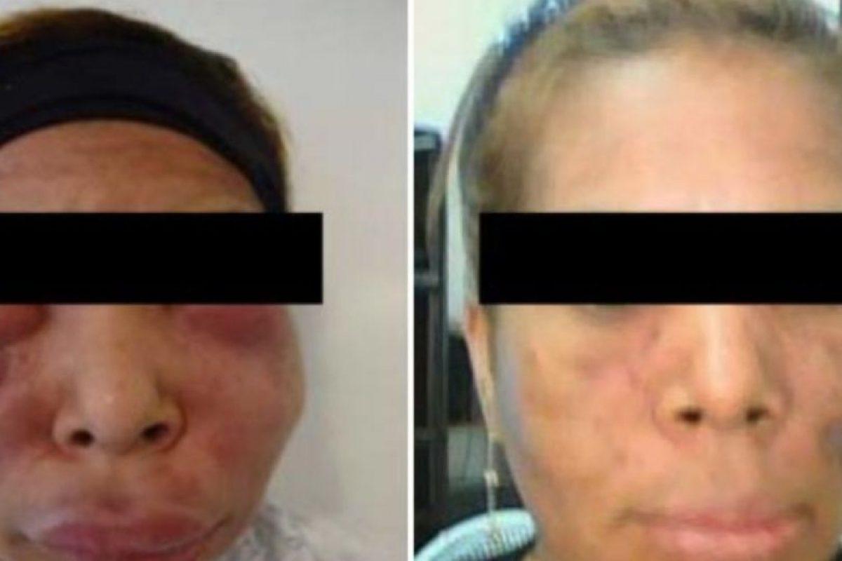 16. Esta mujer abusó de los biopolímeros. Foto:Tumblr. Imagen Por: