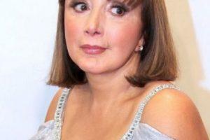 Su rostro se fue deformando debido al tratamiento de belleza con bótox. Foto:Getty Images. Imagen Por: