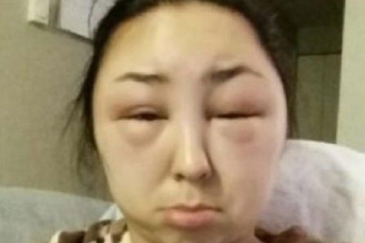 Miren cómo quedó su rostro. Foto:Reddit. Imagen Por:
