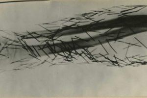 Radiografía de un paciente con agujas en su cuerpo Foto:Reproducción. Imagen Por: