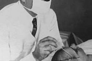 Un médico practicando una lobotomía. Este especialista era conocido con el nombre de Doctor Walter Freeman Foto:Reproducción. Imagen Por: