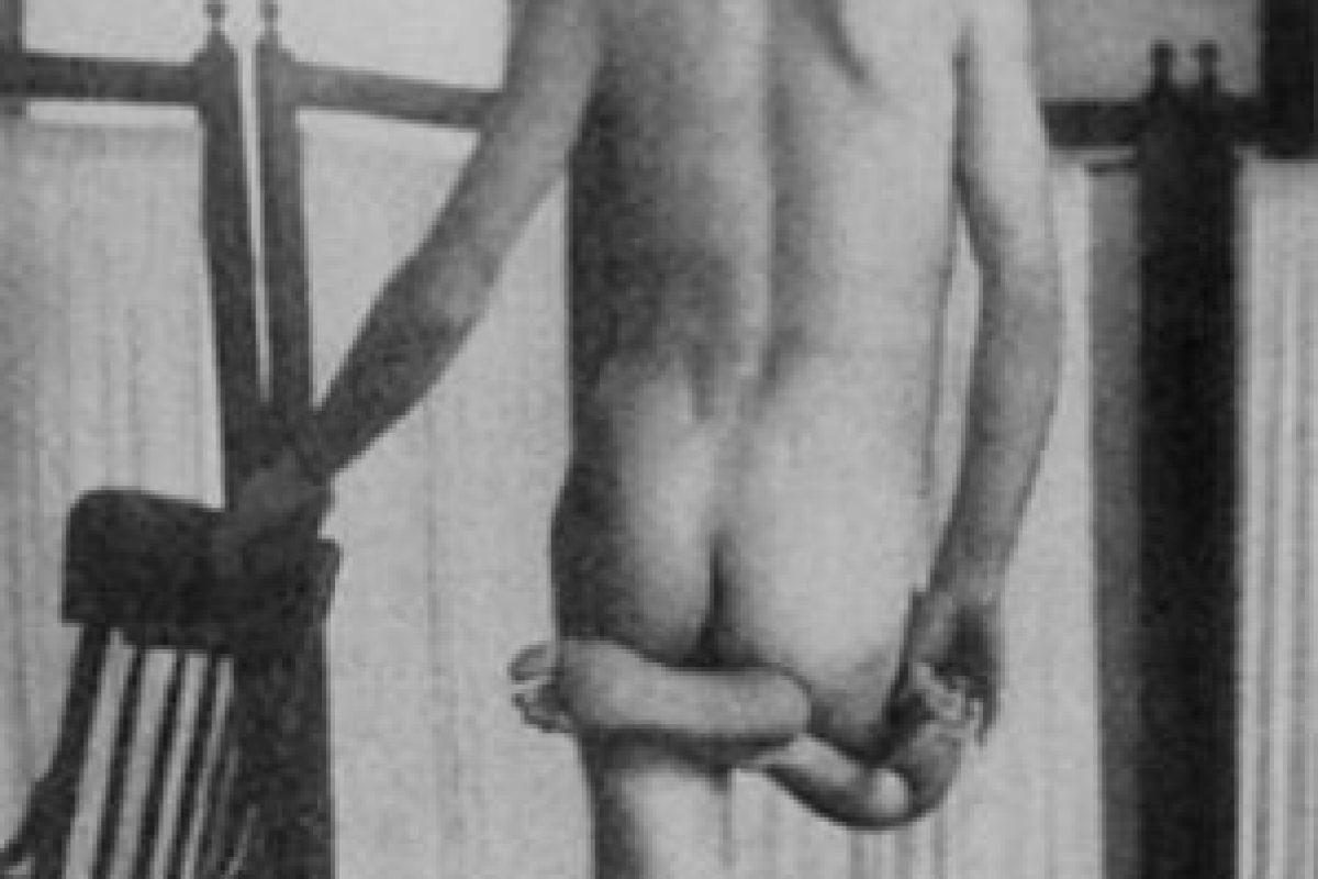 Un paciente con esquizofrenia crónica se para en una posición catatónica Foto:Reproducción. Imagen Por: